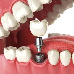 Zubní implantáty současnosti